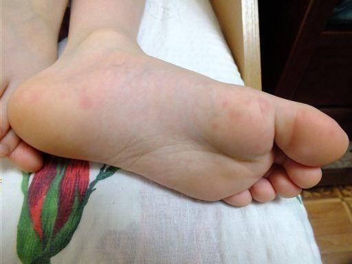 сыпь на ступнях ног