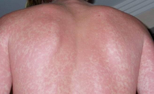 Сыпь на ногах аллергическая