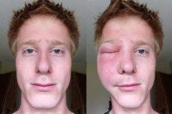 Аллергия на лице после укуса осы