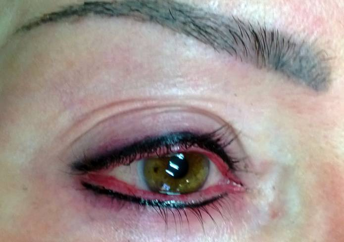 Аллергия после татуажа
