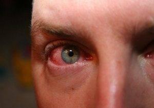 отек глаз при аллергии фото