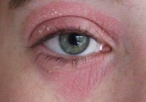 аллергия на косметику на глазах лечение