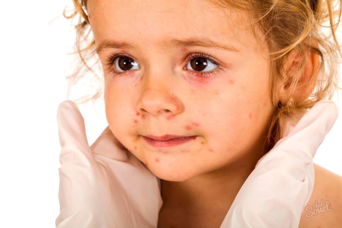 Аллергическая-сыпь-у-ребенка