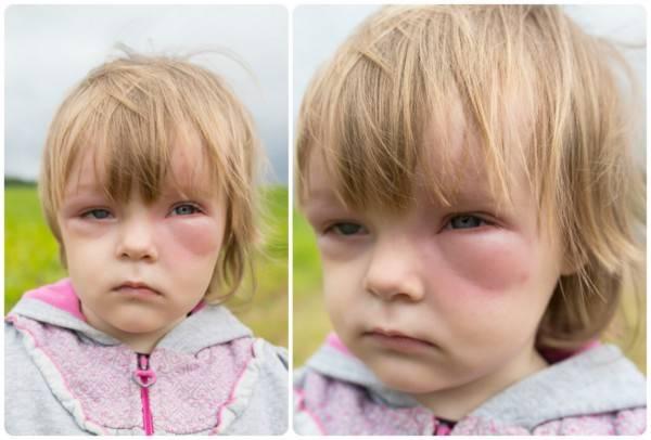 Отёк Квинке под глазами у ребёнка