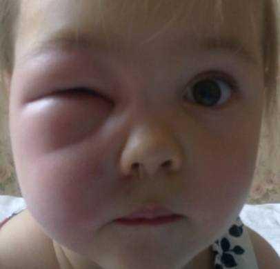 Фото аллергии на укус комара у детей
