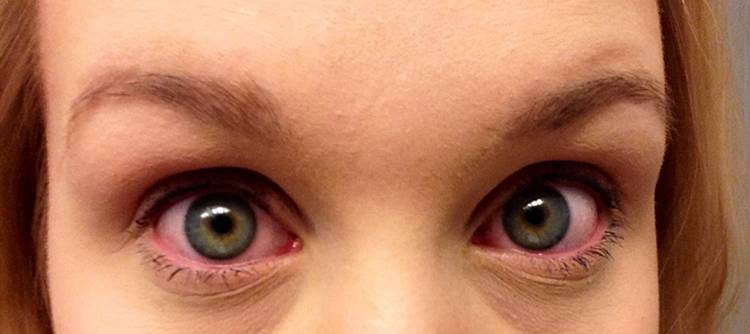 Проявление аллергии