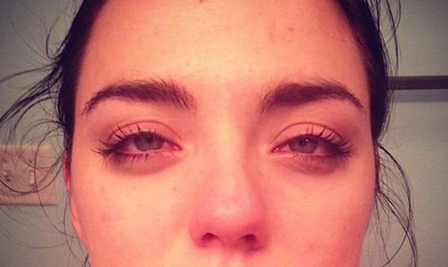 Припухлость глаз