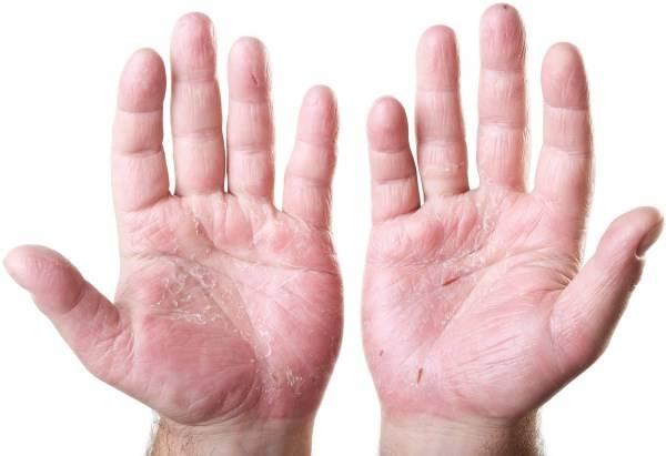Высыпания на коже при аллергии. Фотографии аллергических реакций