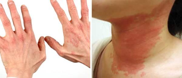 Сыпь на шее чешется — Аллергия