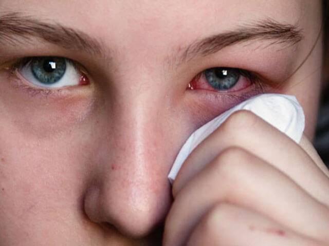 При аллергии на глазах необходимо использовать мазь