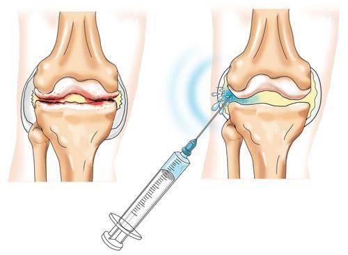 дипроспан уколы в сустав отзывы