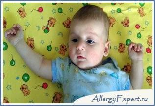 аллергия на сахар у грудничка симптомы