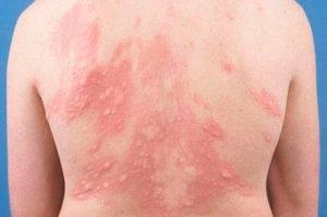 Заболевание кожи