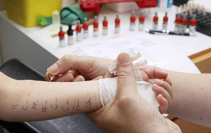 Лечение аллергии на сладкое у взрослых
