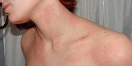 Аллергия на яйца симптомы