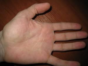 Лечение аллергии на руках лекарственными препаратами