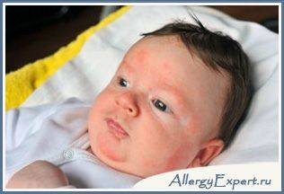 Причины аллергии у грудничка