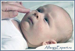 лечения аллергии у новорожденных