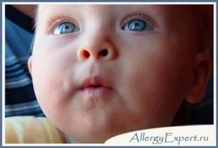 пищевая аллергия у новорожденных