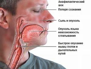 Аллергия на никотиновую кислоту