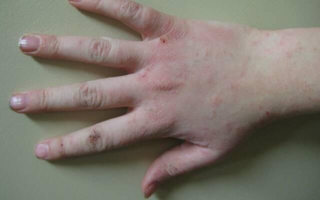 дерматит на руках3