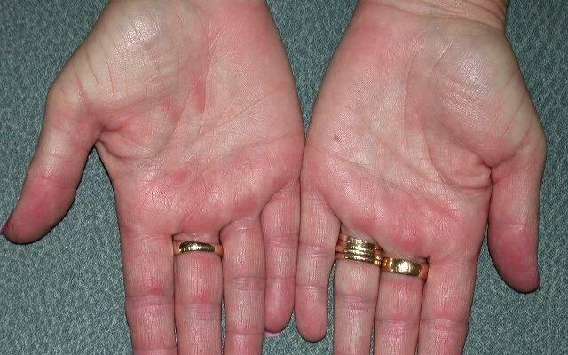 дерматит на руках2