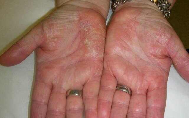 дерматит на руках1