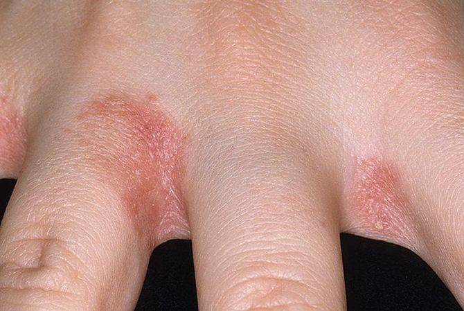 Как лечить аллергический дерматит на руках