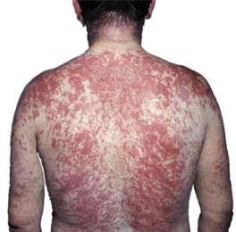 Симптомы аллергии на паразитов