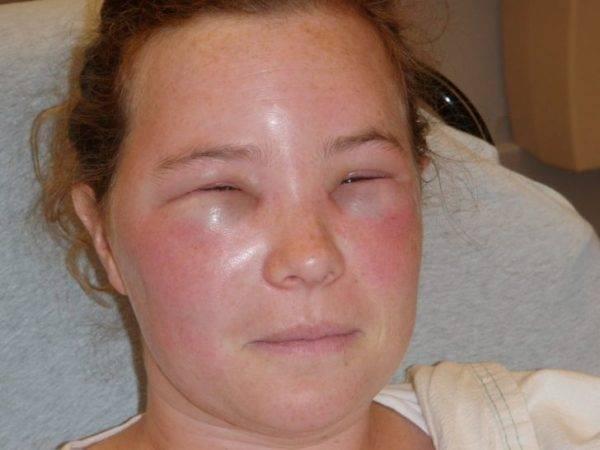 От аллергии отек