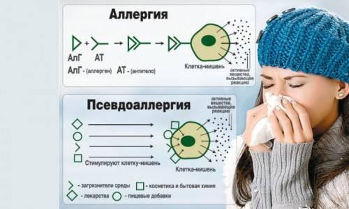Отличие аллергии от псевдоаллергии