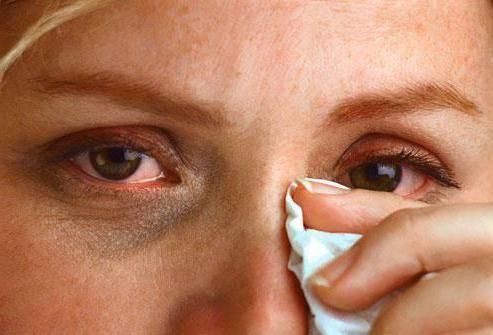 аллергия на глазах у детей как лечить