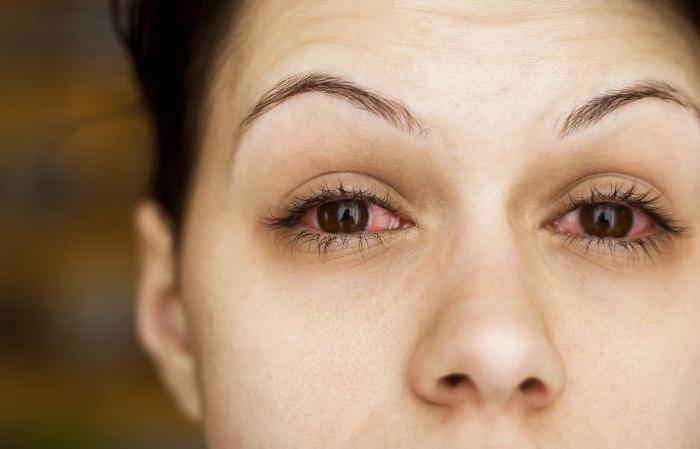 аллергия глаз на солнце лечить
