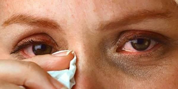 раздражение глаз при аллергии на воду