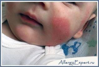 аллергия на смесь что делать