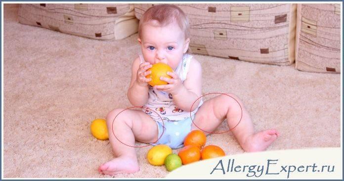 аллергия на цитрусовые у детей