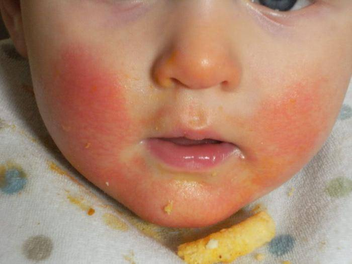 Пищевая аллергия у грудничка