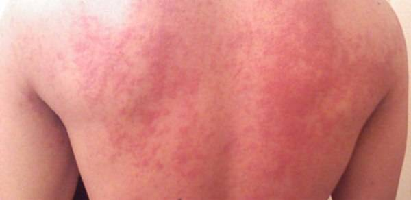 арбуз аллергия симптомы