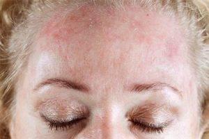 Аллергическая сыпь и красные пятна у взрослых