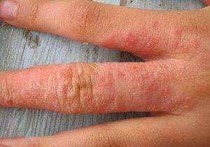 аллергия на руках фото