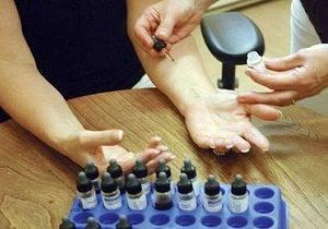 мазь от аллергии на руках