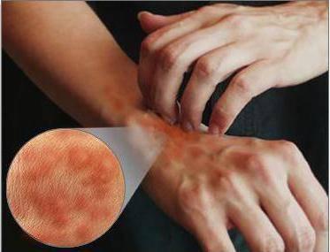 аллергия на ноге чешется