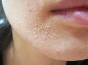 Симптомы аллергии на сахар