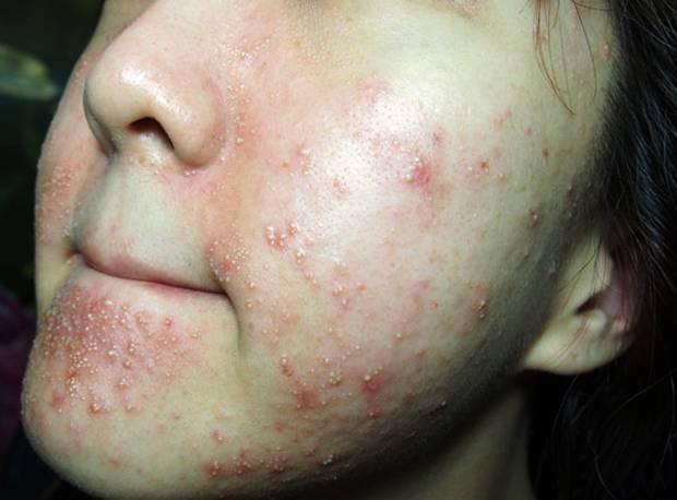Сыпь после крема