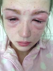 Что делать если аллергия на все краски для волос
