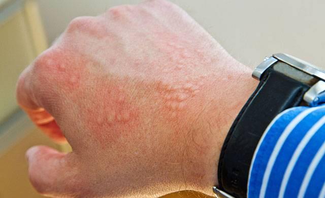 Крапивница после антибиотиков лечение — Аллергия