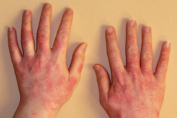 Попав в организм, аллерген запускает реакцию иммунной системы, которая вырабатывает гистамины