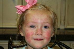 В основном капли ориентированы на устранение аллергических реакций в дыхательных путях, но и помогают, например, при зуде во время ветрянки