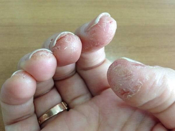 Симптомы аллергии на гель-лак