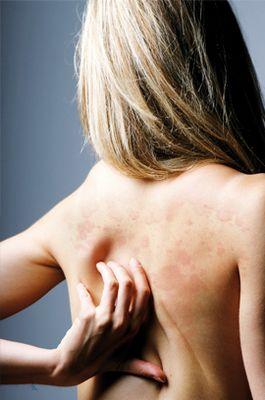 Аллергия на алкоголь, симптомы, как проявляется, лечение стул